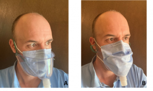 Figure 4. A (left) an example of the design used for the modeling, with the surgical mask over the patient's nose, mouth, and HVNI therapy, but under the FELIX-1 interface. B) an example of the design used for the modeling, with the surgical mask covering the aperture of the FELIX-1 interface.
