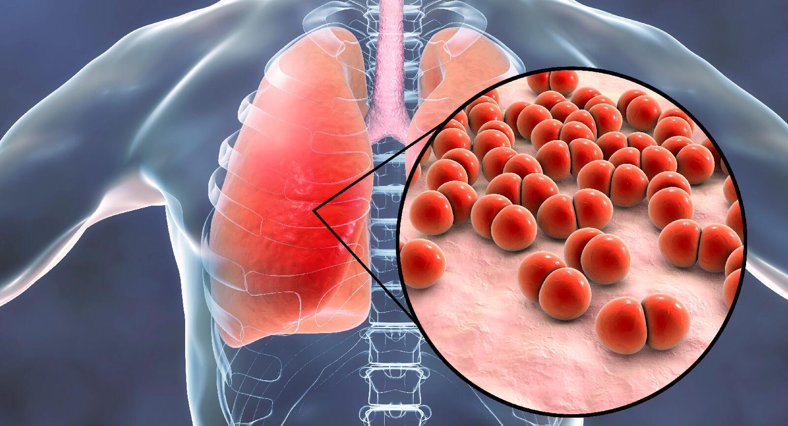 Ventilator Pneumonia