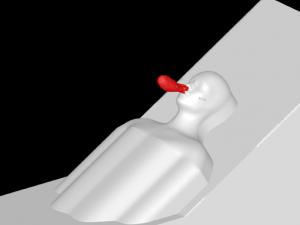 Figure 16. Low Flow Nasal Cannula w/o Mask – Leak